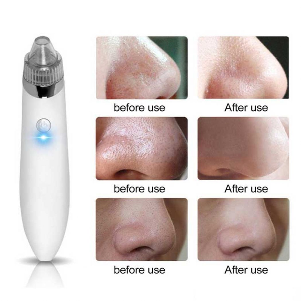 Electric Facial Pore Cleanser Blackhead Remover JB-8620