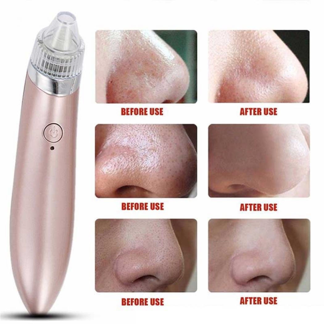 Electric Vacuum Pore Cleaner Spot Acne Blackhead R