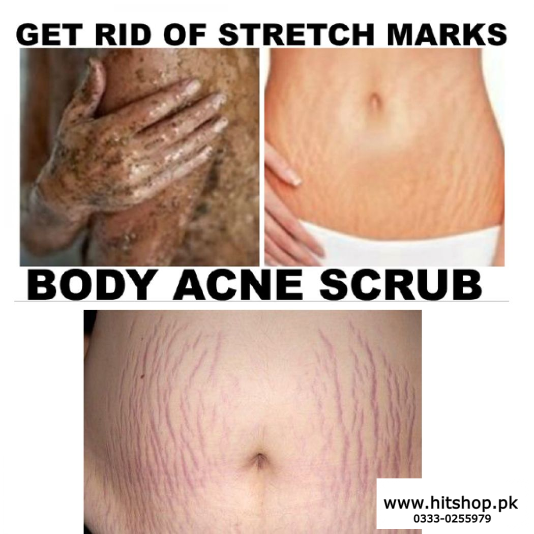 Give Beauty Stretch marks cream scars and cellulites